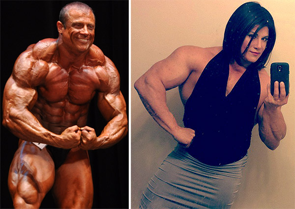 Alternative Dating Transsexual Surgery Female To Man Before And After